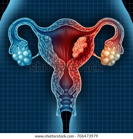 Uterus cancer and endometrial malignant tumor as a uterine medical concept as dangerous growing cells in a female body attacking the reproductive system with 3D illustration elements.