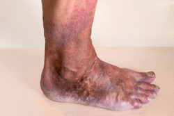 Varicose veins are bulging, sinuous lines that protrude from the skin on the lower leg.