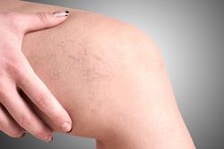 varicose veins in women