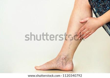 Varicose veins on the womans legs