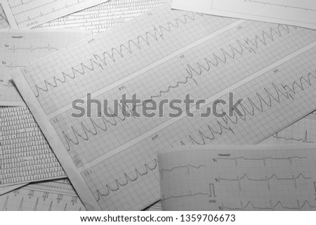 Various electrocardiograms in black and white. Registry of cardiac activity. Cardiac arrhythmias recorded on paper. #1359706673