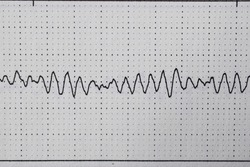 Ventricular fibrillation registered in a Holter EKG