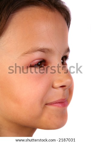 Very cute young child with a hurt eye