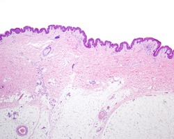 Very low magnification micrograph of thin skin showing the epidermis, the dermis and the adipose tissue of the hypodermis.