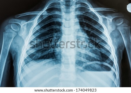 View of a child x-ray film, taken to examine the lungs #174049823