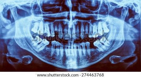 Vintage looking Medical X ray imaging of human teeth