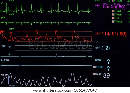 Vital sign ekg monitor. Medical and healthcare concept. #1061497049