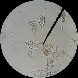 Vorticella is a protozoan that found in fresh water environments.Magnification 400X