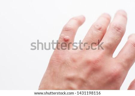 wart on a finger on a white background Zdjęcia stock ©