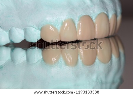 Waxing for dental treatment plan