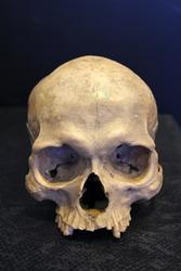 weathered human skull