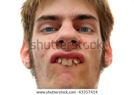 Weird white Caucasian facial expression isolated on white background.