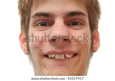 Weird white Caucasian facial expression smiling isolated on white background. Crooked teeth, he needs braces