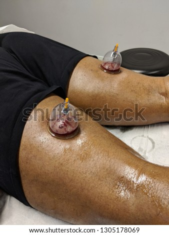 Wet Cupping treatment, also known as, Hijama #1305178069