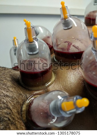 Wet Cupping treatment, also known as, Hijama #1305178075