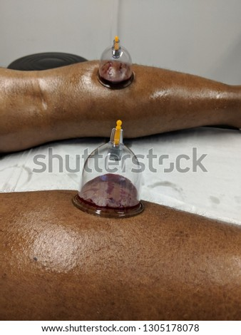 Wet Cupping treatment, also known as, Hijama #1305178078