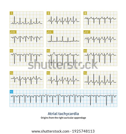 When atrial tachycardia originates from the right atrial appendage, the P wave in lead V1 is inverted, and the P wave in leads V2 to V6 gradually transitions from inversion to upright. Stock fotó ©