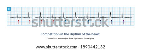 When junctional rhythm and sinus rhythm compete, junctional retrograde P wave and sinus P wave can form different atrial fusion wave. Stock fotó ©