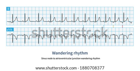 When P wave gradually transits from upright to inverted, and PR interval shortens from more than 120 ms to less than 120 ms, the pacemaker moves between sinus node and atrioventricular node. Photo stock ©