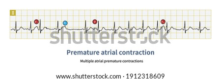 When the coupling interval of atrial premature contraction is different and the shape of atrial P wave is different, it is called multiple atrial premature contractions. Stock fotó ©