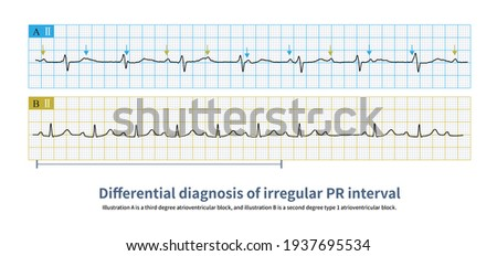 When the PR interval is not fixed, the electrocardiogram needs to differentially diagnose the third degree atrioventricular block and the second degree type I atrioventricular block. Photo stock ©
