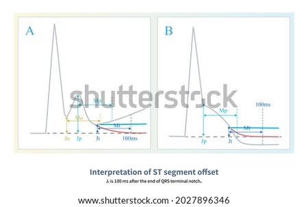 When there is a notch or blur at the end of QRS wave, the ST segment offset direction and amplitude shall be interpreted at 100ms after the notch or blur at the end of QRS wave. Zdjęcia stock ©
