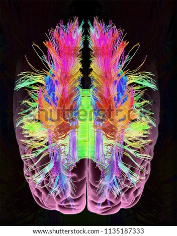 White matter is found in the deeper tissues of the brain (subcortical). It contains nerve fibers (axons), which are extensions of nerve cells (neurons).  Photo stock ©