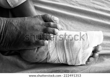 White medicine bandage on human  foot
