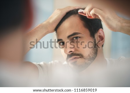 White metrosexual man worried for alopecia, applying lotion for hair growing. Young person checking receding hairline at mirror