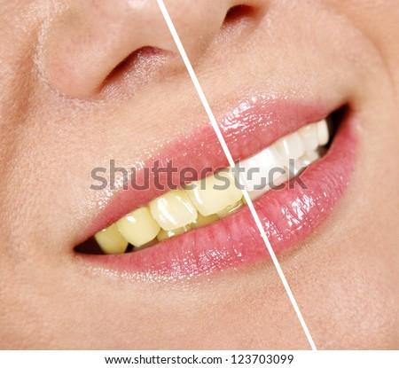 Whitening treatment - stock photo
