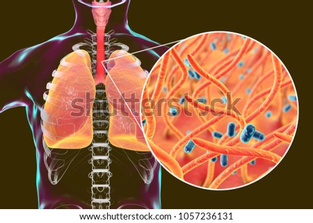 Whooping cough bacteria Bordetella pertussis in human airways, 3D illustration Stock photo ©