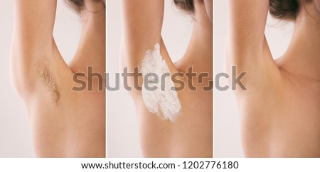 Woman armpit. Hairy. Before and after.