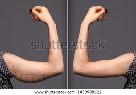 Woman arms with bat wings, comparison between before and after b