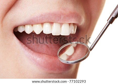 Woman at the dentist with mirror near her teeth