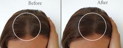 woman baldness hair   after treatment
