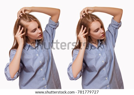 Woman Before and After Hair Loss Treatment on White Background.  -  Image