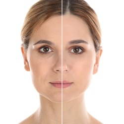 Woman before and after plastic surgery on white background