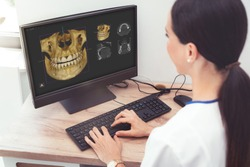 Woman dentist is looking at a photo of the 3D tomograph. Treatment, protection, health care for teeth