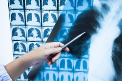 Woman doctor compare patient chest x-ray and CT scan film before treatment.Image lung at radiology department in hospital.Covid-19 scan body xray test detection for covid virus epidemic spread concept