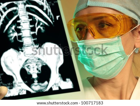 Woman doctor holding an x-ray in the hospital