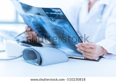 Woman Doctor Looking at X-Ray Radiography in patient's Room Foto stock ©