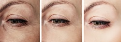 woman eye wrinkles before and after procedures