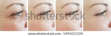 woman eyes wrinkles   after treatment