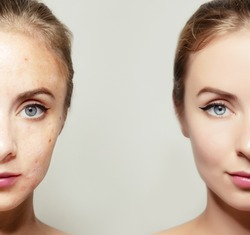 woman face portrait with clear and pimpled skin / skin treatment products concept for design