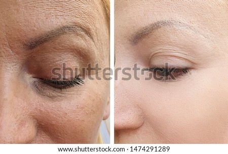 woman face wrinkles   after correction