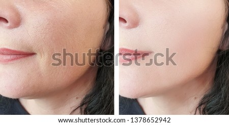 woman face wrinkles   after cosmetology procedures