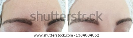 woman face wrinkles   after cosmetology treatment