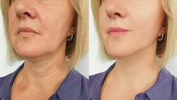 woman face wrinkles   after treatmen