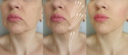 woman face wrinkles   after treatment, thread lifting
