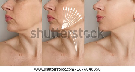 woman face wrinkles   after treatment, thread lifting Сток-фото ©